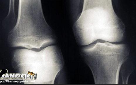 Kenai Risiko dan Gejala Osteoporosis
