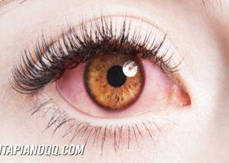 3 Cara Melindungi Kesehatan Mata dari Polusi Udara